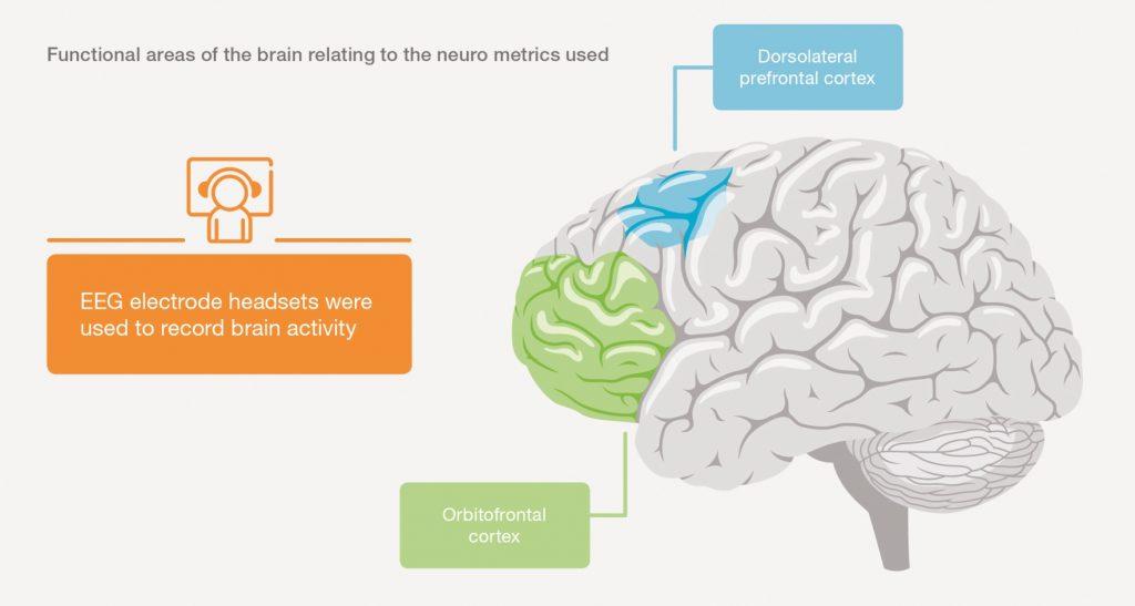 nivel stres creier