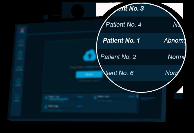 screening pacienti xvision
